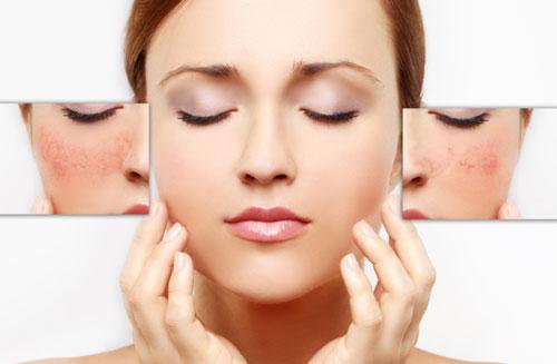 Da nhạy cảm cảm là gì.4 cách nhận biết làn da nhạy cảm